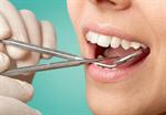 Сlipart Dentist Dental Hygiene Dentist Office Human Teeth Surgery   BillionPhotos