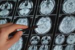 Сlipart Brain MRI Scan Alzheimer's Disease Medical Scan CAT Scan photo  BillionPhotos