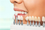 Сlipart Dental Hygiene Dentist Human Teeth Dentist Office Dental Equipment photo  BillionPhotos