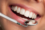 Сlipart Dentist Dental Hygiene Human Teeth Dental Equipment Human Mouth photo  BillionPhotos