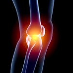 Сlipart Human Knee Pain Arthritis Human Joint X-ray 3d  BillionPhotos